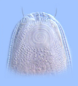&lt;em&gt;Cheironchus&lt;/em&gt; sp. has a large, spiral ampid, a chemosensory structures foud in all nematodes.<br />Photo: W. Duane Hope